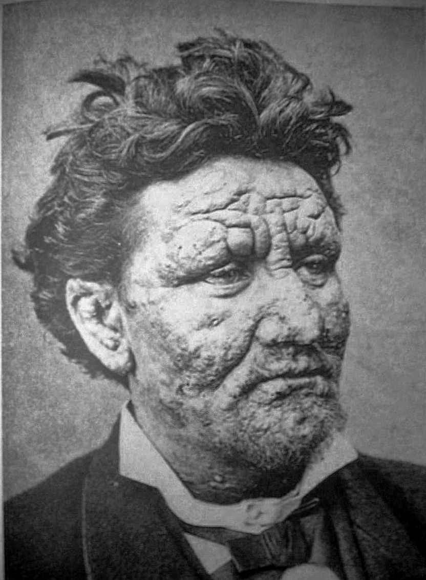 24-year-old man from Norway,  infected with leprosy, 1886