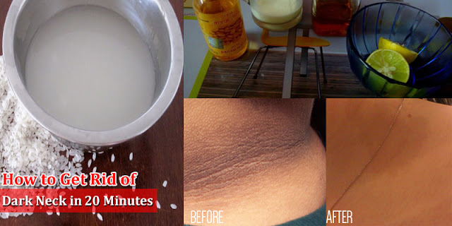 Home Remedies For Dark Neck - How to Get Rid Of Dark Neck in 20 Minutes?