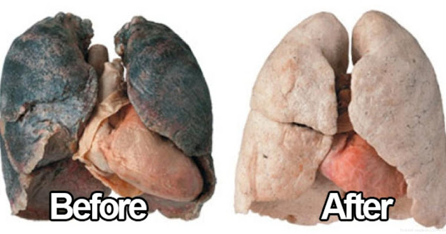 How To Purify Your Lungs Within 72 Hours!