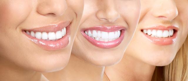 Cara Merawat Gigi Agar Tetap Putih