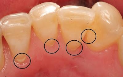 có nên cạo vôi răng khi đang mang thai không -2