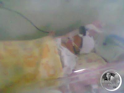 FOTO : Gigin saat umur 1-7 Hari di ruangan NICCU   RS. Efarina Etaham Purwakarta ( Sekarang RS. SILOAM).