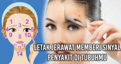 Letak Jerawat Memberi Sinyal Penyakit di tubuhmu