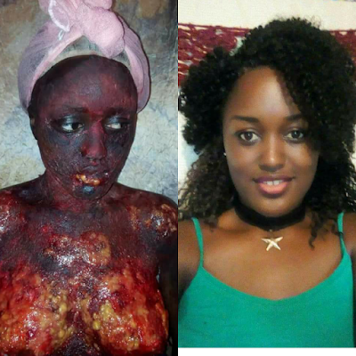 Ladies beware! Look at what this drugs did to this pretty girl (Graphic Photos)