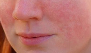 Stress rashes on the patient's face stress rash images