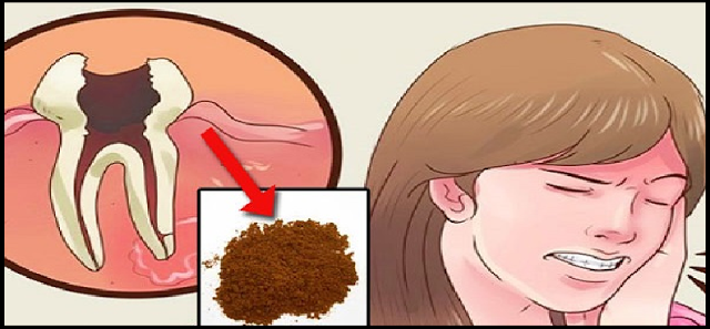 Inilah Obat Tradisional Sakit Gigi Berlubang dan Gusi Bengkak yang Super Mujarab Cukup di Olesin Aja ke Giginya !!