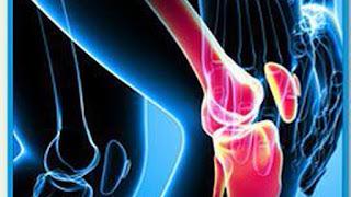 Punca dan Rawatan Sakit Sendi