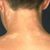 Những biểu hiện của lang ben thường gặp nhất