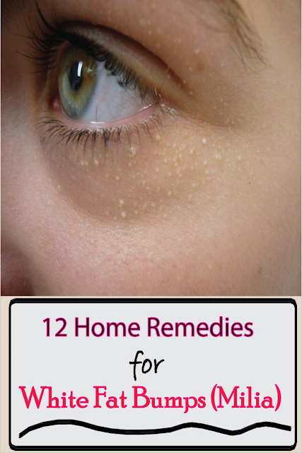 12 Home Remedies for White fat bumps (Milia)