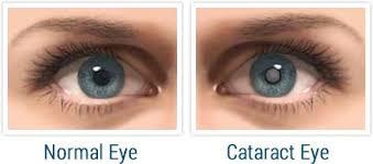 cataract-symptoms,www.healthnote25.com