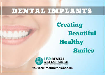 https://www.fullmouthimplant.com/implant-services/full-mouth-dental-implants.html