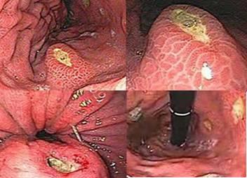Resultado de imagen de Úlceras pépticas