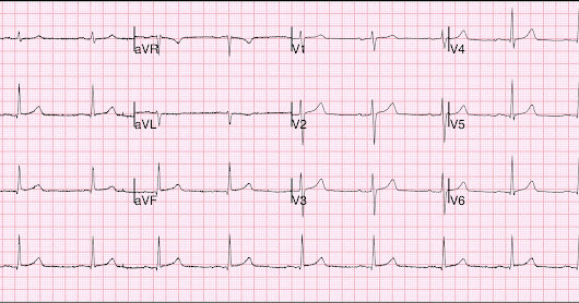 Is this ECG diagnostic of coronary occlusion? Also: Inferior de Winter's T-waves on prehospital ECG??
