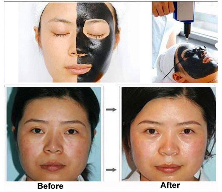 Beauty Salon Pigmentation Treatment Tattoo Removal Skin