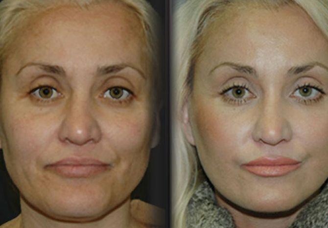 Flexing Your Face With Facial Gymnastics To Gain A Non