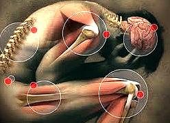Fibromialgia: Síndrome Dolorosa Crônica, não Inflamatória, ataca principalmente as mulheres de 30-55 anos
