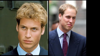 Prince William Hair Loss
