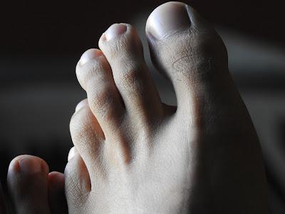 Μύκητες και κακοσμία ποδιών