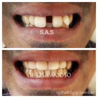 Foto hasil perbaikan gigi depan bercelah berjarak diastema dengan veneer dan tanpa behel