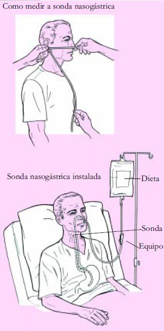 Dieta enteral sonda nasogastrica