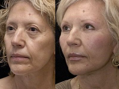 Eradicating The Symptoms Of Getting Older With Face Fitness Workout Techniques