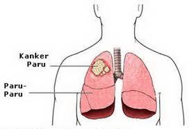 Penyakit Paru Paru Dan Gejalanya