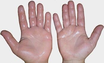 Telapak Tangan Berkeringat Gejala Penyakit Apa