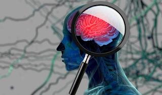 Ανεύρυσμα εγκεφάλου: Τα συμπτώματα που θα πρέπει να μας ανησυχήσουν