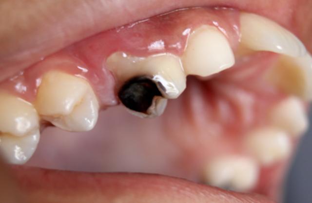 Cara Merawat Gigi Yang Berlubang Sehat Adalah Nikmat Terbesar Dari
