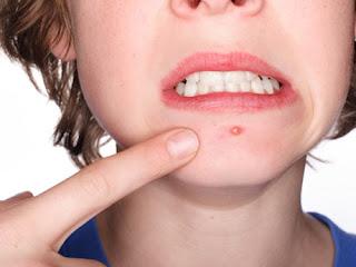 como combatir el acne naturalmente