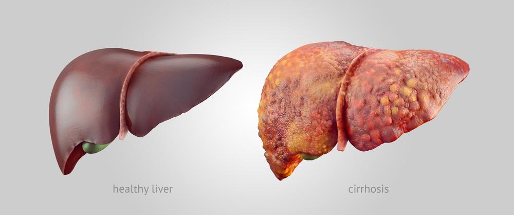 Beschadigde lever door medicijnen
