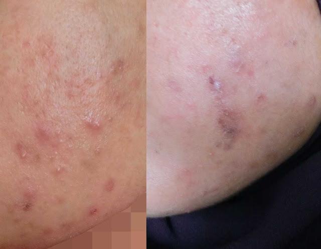 Ephyra Skin Nano Advanced Repair Serum Bantu Pudarkan Parut