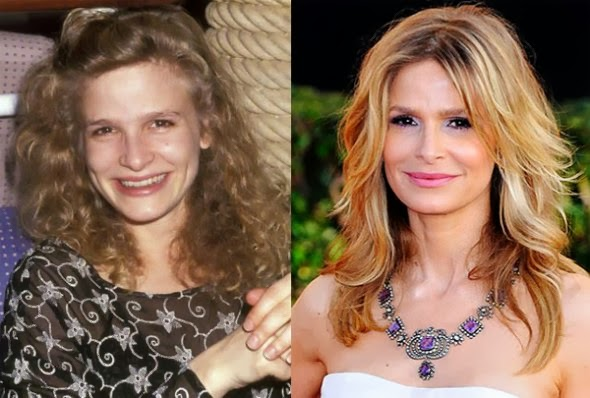 Kyra Sedgwick Plastic Surgery Breast Implants Facelift