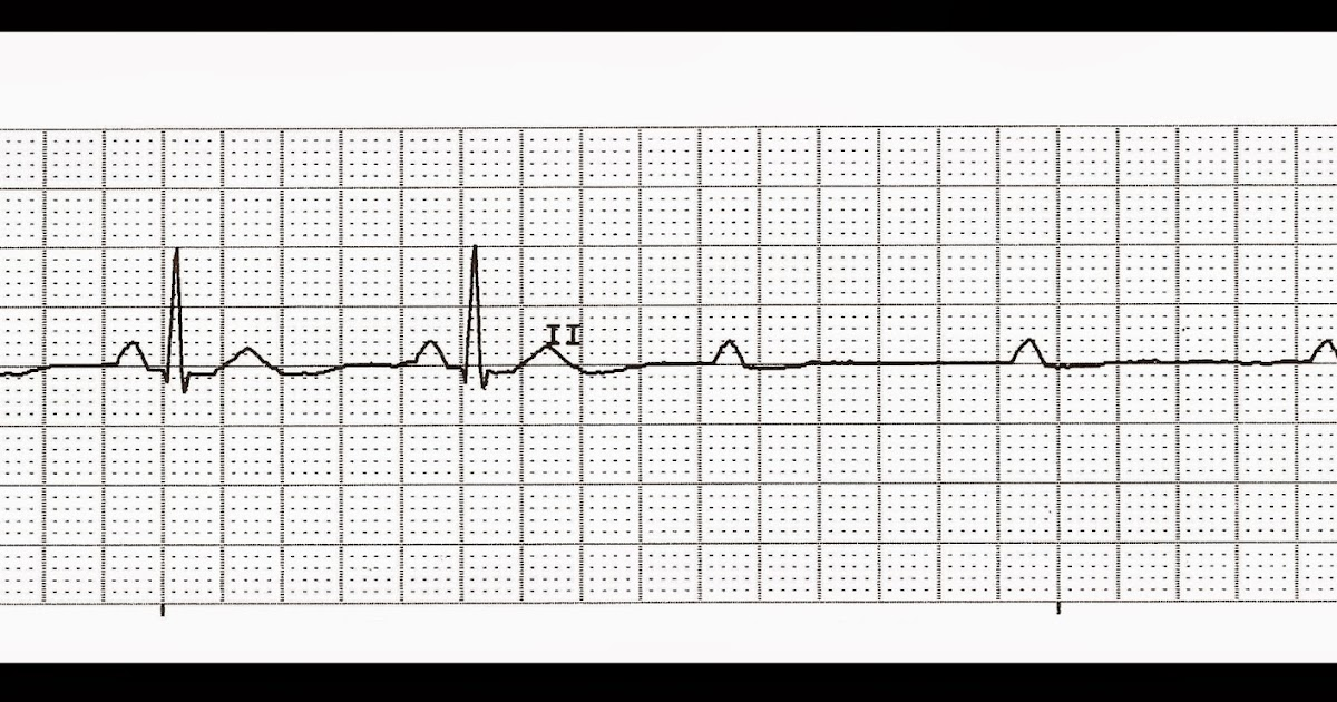 Float Nurse: Practice EKG Strips 382