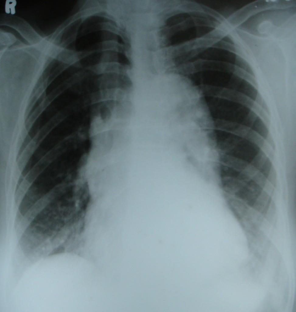 Simple X Ray Diagram Diagram For Scintillator