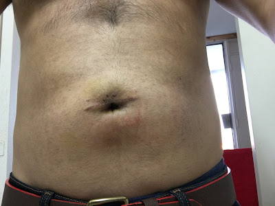 Two weeks after hernia repair at Shouldice  - front