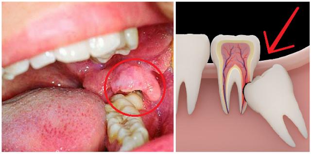 Gigi Berlubang Bisa Menjalar ke Otak Karena Gusi Infeksi, Jangan Diabaikan Bisa Sebabkan Kematian