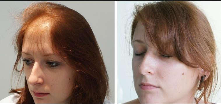 قبل وبعد زراعة الشعر لأنثى