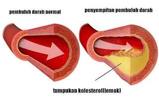 Cara Menurunkan Kolesterol Secara Alami Dan Cepat