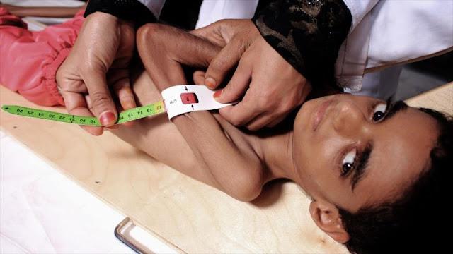 ONU: Más de 7 millones de niños yemeníes, amenazados por hambre