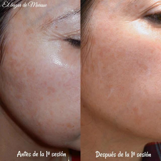 Eliminar_manchas_de_la_piel_con_laser