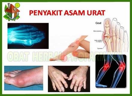 asam urat di tangan, asam urat di kaki,asam urat di lutut, asam urat pada jari