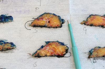 Potongan Sel Kanker yang masih baru