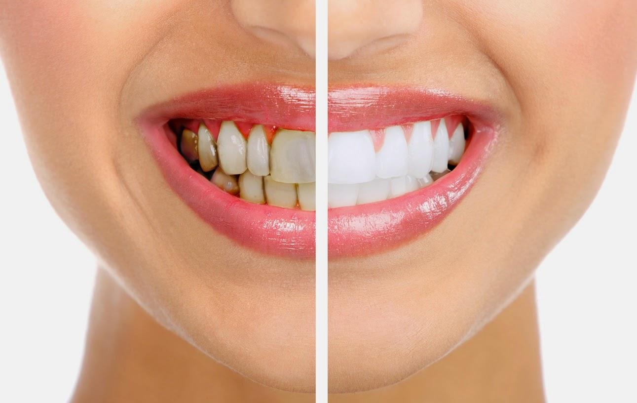 Hamilelikte Diş Bakımı Nasıl Olmalıdır