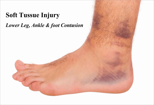 Soft Tissue Injuries, Types And Treatment
