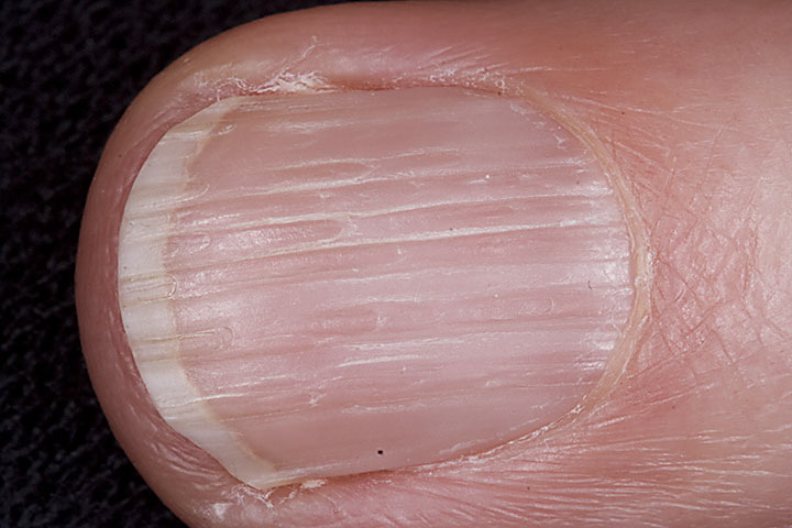 Splitting nails thyroid - Awesome Nail