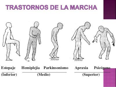 Diferentes tipos de marchas patológicas / Rehabilitación  de la marcha
