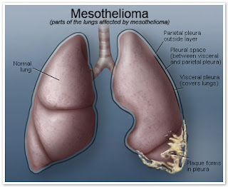 Mesothelioma - Cancer Council Australia