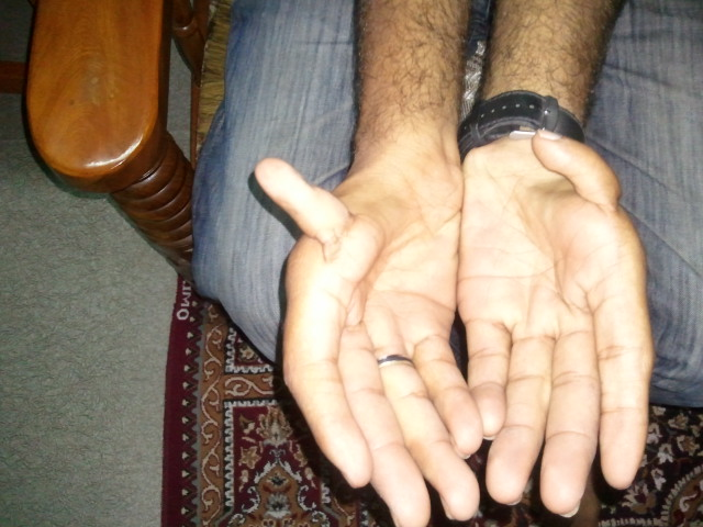 palmistry marriage line, palmistry basics, palm reading, hasta rekha, hand reading in hindi, mole on right palm, hasta rekha shastra, mole on palm, fate line, surya rekha, marriage line astrology, mole on left hand palm, mystic cross, lotus sign in palmistry, money line in hand, palm reading travel line, hast rekha shastra in marathi, m sign on palm, broken heart line palmistry,