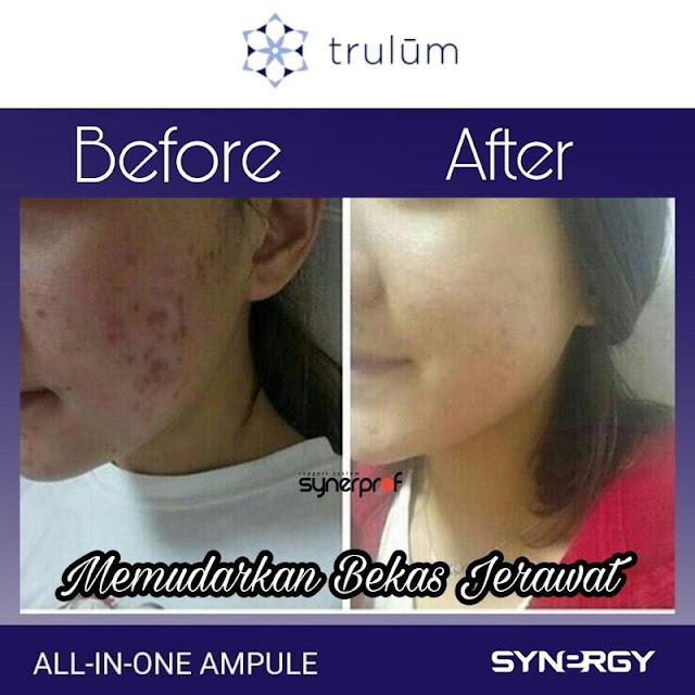 Jual Serum Penghilang Keriput Trulum Skincare Ujungjaya Sumedang